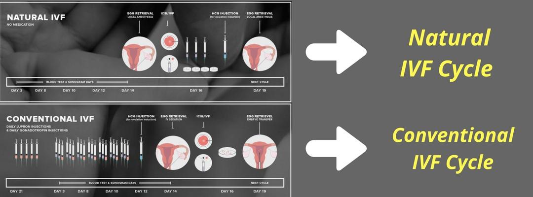 Natural IVF Cycle