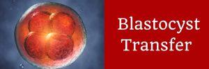 Blastocyst Transfer